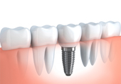 Tooth Implants in Ahmedabad