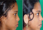 Ear Implant in Ahmedabad