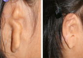 Ear Reconstruction in Ahmedabad