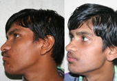 Orthognathic Surgery in Ahmedabad