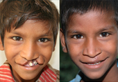 Cleft Lip and Palate Treatment in Ahmedabad