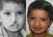 Cleft Lip and Cleft Palate Treatment in Ahmedabad